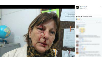 Professora é agredida após chamar atenção de aluno