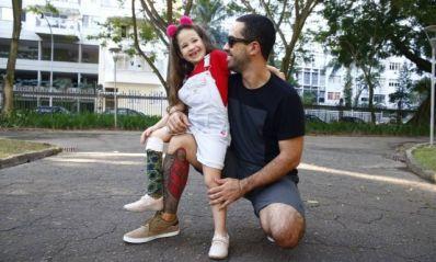 Pai tatua prótese para ficar igual filha que teve perna amputada